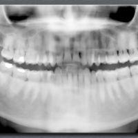 Cazado tras hacerse en el coche el selfie bucal más caro del mundo para enviárselo al dentista