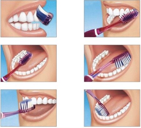 métodos de limpieza bucal