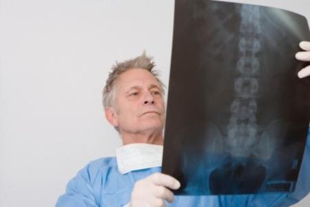 médico viendo médula en placa