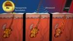 Estas nanopartículas activadas por láser podrían suponer el fin del acné