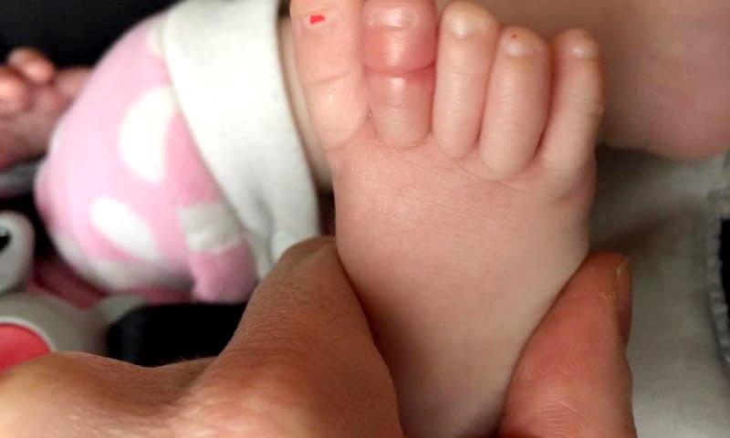 dedo hinchado del pie