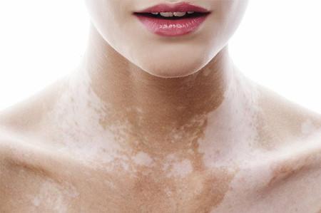 Vitíligo: cuando la piel comienza a perder su color. Sus causas y posibles soluciones