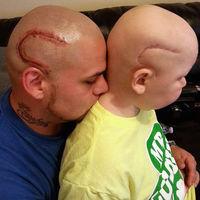 Se hace un tatuaje igual que la cicatriz de su hijo, operado de un cáncer cerebral