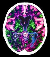 Un fármaco reduce los síntomas del alzhéimer en ratones