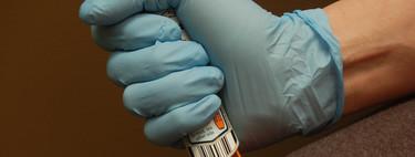 Si eres alérgico en EEUU, la diferencia entre la vida o la muerte puede costarte 600 dólares: el caso EpiPen