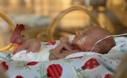 Placenta artificial para los niños prematuros