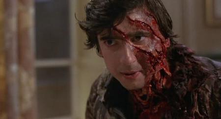 An American Werewolf In London Jack Slashed