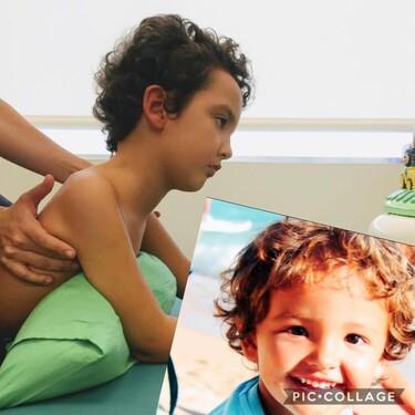Las células madre ayudarán a Bruno y a otros niños con daño cerebral adquirido en su recuperación neuronal