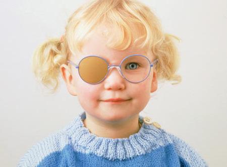 """Ambliopía u """"ojo vago"""" en los niños"""