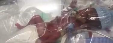 Un bebé prematuro de 23 semanas y 760 gramos logra sobrevivir gracias a mantenerlo en una bolsa de plástico con oxígeno