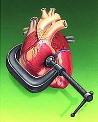 La hipertensión se debe a una inflamación del cerebro