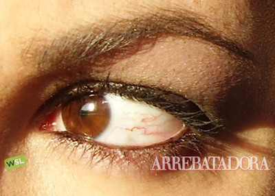 Si tienes venitas en los ojos, evita los colirios cosméticos