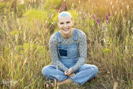 Chica Alopecia 2