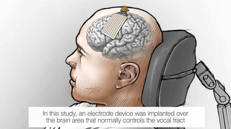 Neuroprosthesis Restores Words To Man With Paralysis 00 00 34 02 Imagen Fija002