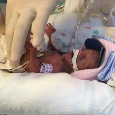 Nació con 368 gramos y tras cuatro meses en la UCI fue dada de alta para recibir el año nuevo en casa