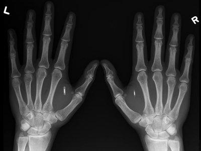 Fichar usando tu mano: esta empresa sueca ofrece a sus empleados la inserción de un microchip bajo la piel