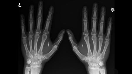 Microchip para la piel