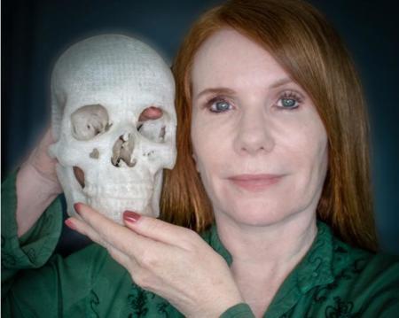 La impresión 3D de su tumor le salvó la vista a esta mujer
