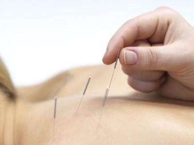 La acupuntura es útil para combatir la depresión