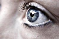 Blefaroplastia, cirugía estética de reducción de bolsas oculares. Fotos post-operación