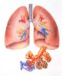Cómo sobrellevar la bronquiolitis en casa