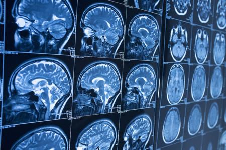 Un nuevo fármaco puede frenar el deterioro cognitivo en los pacientes de Alzheimer