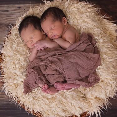 Embarazos múltiples: ¿cuántos tipo de gemelos existen?
