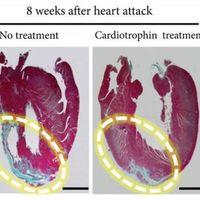 Con esta proteína tu corazón creerá que haces ejercicio aunque no lo hagas