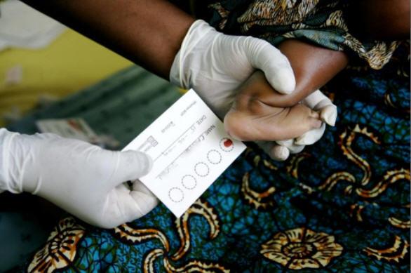 Desciende el número de niños con SIDA