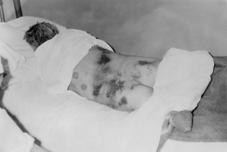 Crimean Congo Hemorrhagic Fever
