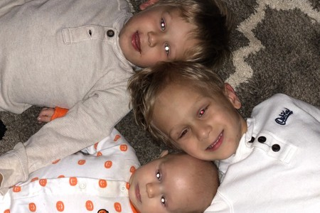 Tres hermanos son diagnosticados con retinoblastoma, un raro cáncer infantil ocular