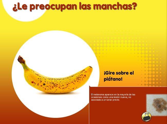Euromelanoma 2012: previene controlando tus manchas