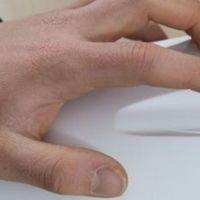 Un láser, la alternativa a los pinchazos para los enfermos de diabetes