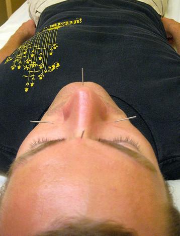 Es buena la acupuntura para bajar de peso