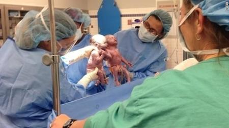 Impactante: gemelas idénticas nacen tomadas de la mano