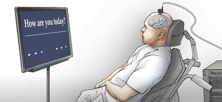 Neuroprotesisi Habla 2