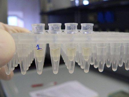 Resistencia a los antibióticos, un antiguo mecanismo de las bacterias