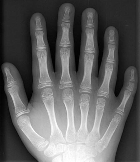 ¿Sabías que 1 de cada 3.000 europeos nace con más de diez dedos en las manos?