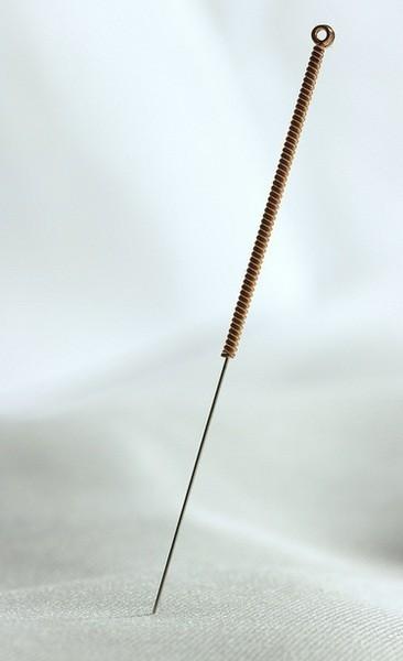 Punción seca: tratamiento invasivo de los puntos gatillo