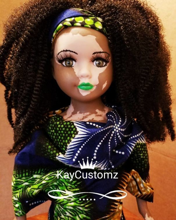 muñeca-con-vitiligo
