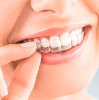 Invisalign en adolescentes: cuándo se recomienda y qué debes saber si tu hijo va a comenzar un tratamiento de ortodoncia invisible