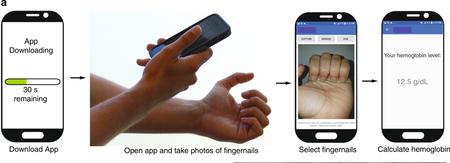 Desarrollan una app móvil capaz de detectar si alguien tiene anemia con una foto de sus uñas