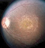 Terapia génica para tratar la ceguera infantil producida por la amaurosis congénita de Leber