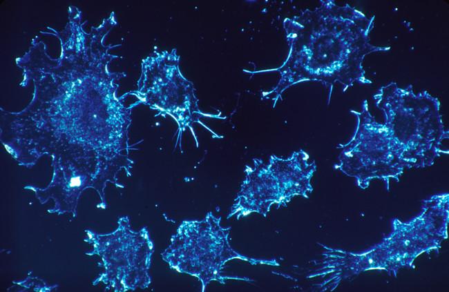 Un grupo de científicos da los primeros pasos para encontrar una vacuna universal contra el cáncer