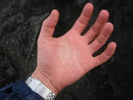Gimnasia vascular para evitar los sabañones