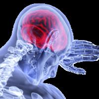 La actividad física disminuye más de la mitad el riesgo de muerte prematura en personas que han cursado un accidente cerebrovascular