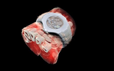 Así son las primeras radiografías en color y en 3D