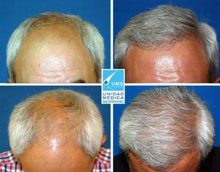 Antes y después paciente 45 años