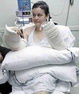 Primer transplante bilateral de manos