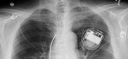 Una paciente pide ver el código fuente de su implante para revisarlo